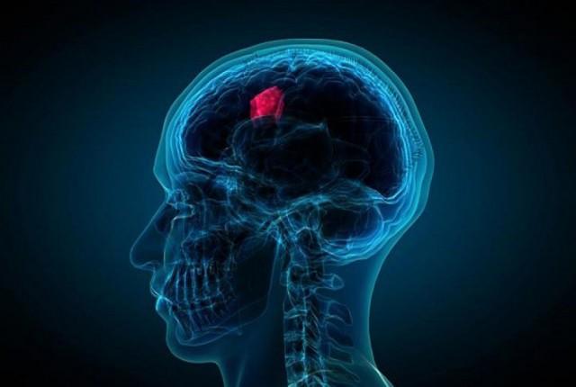 استفاده از هوش مصنوعی برای یافتن تومور سرطانی
